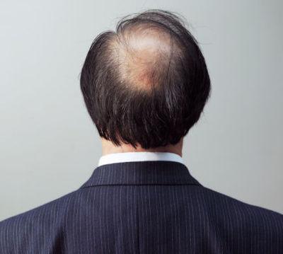 男性脱发的9个偏方