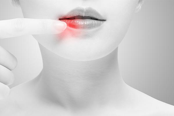 5个病因,致使口腔溃疡反复发作
