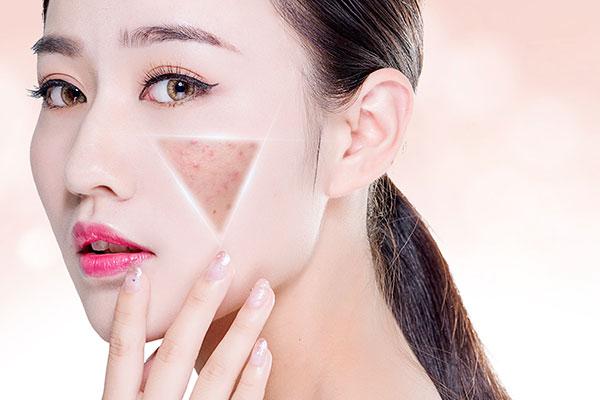 黄褐斑(面部对称分布的淡褐色或黄褐色斑)是让女性很头疼的
